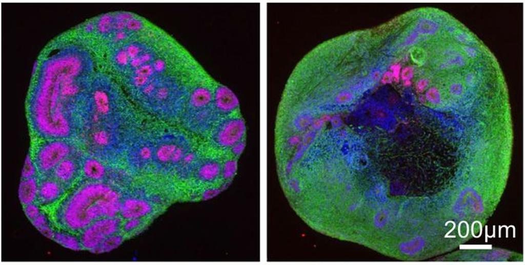 """Los recientes avances han permitido a los científicos desarrollar neuronas en 3D, modelando un """"minicerebro"""". En este estudio, se encontró que los minicerebros EH de inicio juvenil (derecha) tenían menos estructuras internas y más pequeñas, mostradas aquí en rosa, en comparación con los organoides que representan a alguien sin EH (izquierda)."""